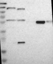 NBP1-81742 - Glucokinase / Hexokinase-4