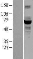NBL1-11010 - GCKR Lysate