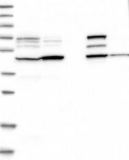 NBP1-88781 - GCNT2 / NACGT1