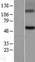 NBL1-11016 - GCNT3 Lysate