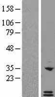NBL1-09629 - GCP2 Lysate