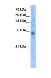 NBP1-59587 - SLC25A16 / GDA