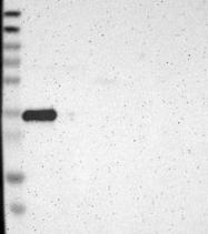 NBP1-81050 - GDF15