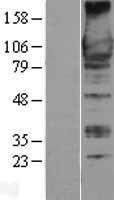 NBL1-07680 - GEF-H1 Lysate