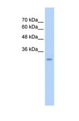 NBP1-58906 - GEM / KIR