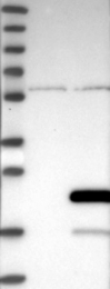 NBP1-82075 - Gemin-6