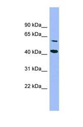 NBP1-57621 - GFOD1