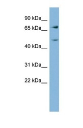 NBP1-56688 - GFPT2 / GFAT2
