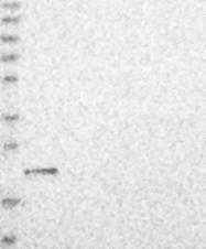 NBP1-86727 - GGCT