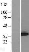 NBL1-11058 - GGPS1 Lysate