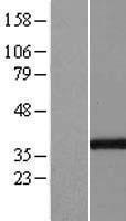 NBL1-11059 - GGPS1 Lysate