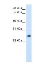 NBP1-56928 - GGTLC1 / GGTLA4