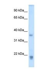 NBP1-59316 - Growth hormone 2
