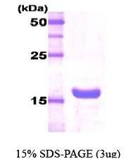 NBC1-18451 - Growth hormone 2