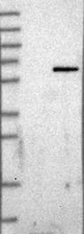 NBP1-81309 - GHDC