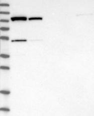 NBP1-84269 - GHITM / DERP2