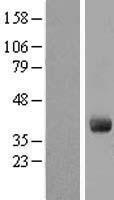 NBL1-11073 - GIMAP4 Lysate