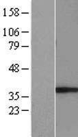 NBL1-11074 - GIMAP5 Lysate
