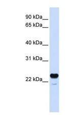NBP1-62296 - C1QTNF1