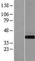 NBL1-11080 - GIPC1 Lysate