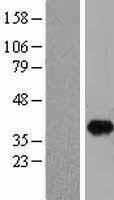NBL1-11081 - GIPC1 Lysate