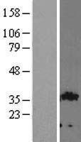 NBL1-11082 - GIPC2 Lysate