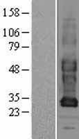 NBL1-11095 - GJB3 Lysate