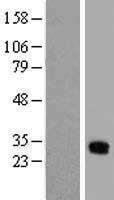 NBL1-11096 - GJB3 Lysate