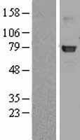 NBL1-11106 - GLB1 Lysate