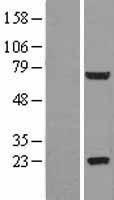 NBL1-11107 - GLB1L2 Lysate