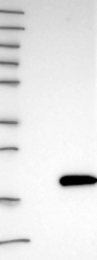 NBP1-86703 - GAPR-1