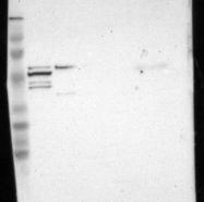 NBP1-83492 - GLIS1