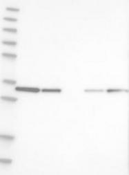 NBP1-88462 - GLOD4