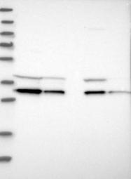NBP1-88464 - GLOD4