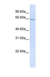 NBP1-59029 - GLP2 receptor