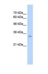 NBP1-54773 - Glutaminase liver isoform