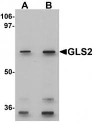 NBP1-76544 - Glutaminase liver isoform