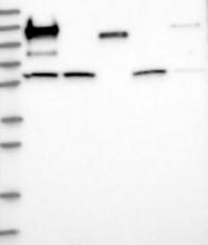 NBP1-81856 - Glutaminase liver isoform