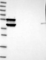 NBP1-82010 - GLT1D1
