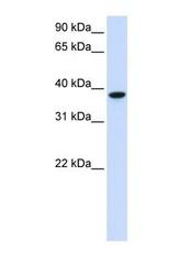 NBP1-69619 - GLT8D2 / GALA4A