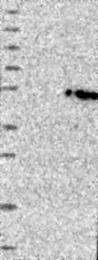 NBP1-83538 - GLT8D2 / GALA4A