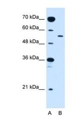 NBP1-59688 - GLUT10 / SLC2A10