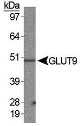 NBP1-06565 - SLC2A9 / GLUT9
