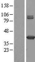 NBL1-11137 - GMDS Lysate