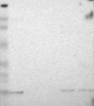 NBP1-89755 - Glia maturation factor beta / GMFB