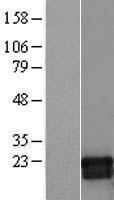 NBL1-11139 - GMF beta Lysate