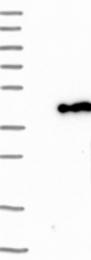 NBP1-87459 - GMP reductase 1 / GMPR1