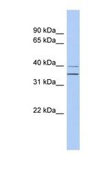 NBP1-58311 - G protein alpha Q / GNAQ