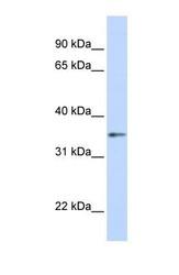 NBP1-55308 - Transducin beta chain 1 / GNB1