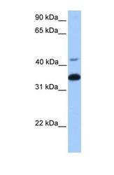 NBP1-55323 - Transducin beta chain 2 / GNB2